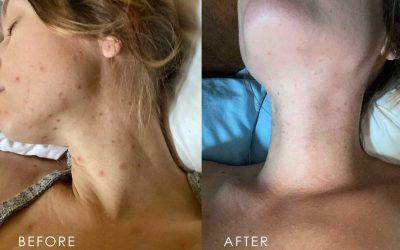 Miracle Skin Healing